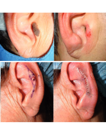 Excision of the external ear with simple partial repair