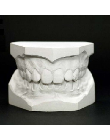 Study models (replica of the dental structure)