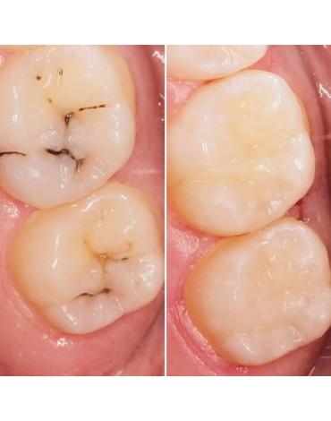 Resin dental footwear (dental filling)