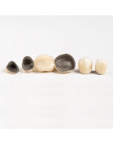 Metal porcelain crown (metal porcelain case)