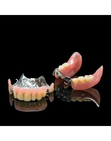 Chrome  Cobalt Metal Removable Partial Prosthesis (Skeletal Prosthesis)