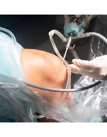 Repair arthroscopy of anterior cruciate ligament