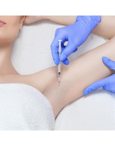 Botulinum toxin application for hyperhidrosis