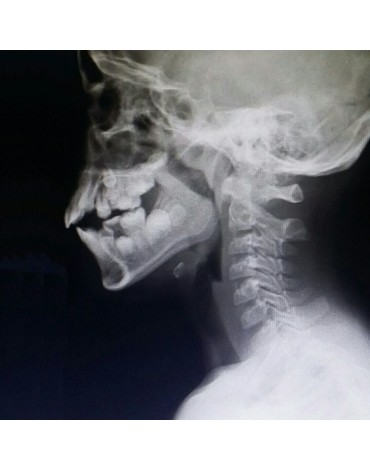 X-ray of pharyngeal cavum