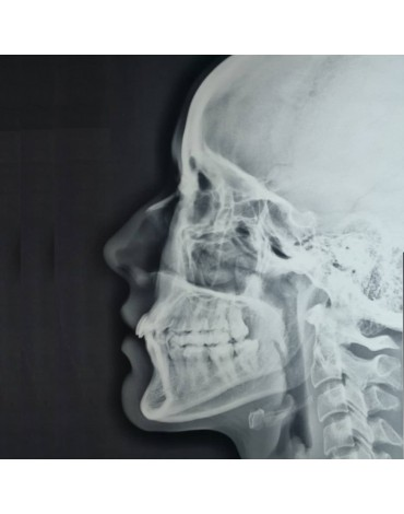 X-ray of perfilograma