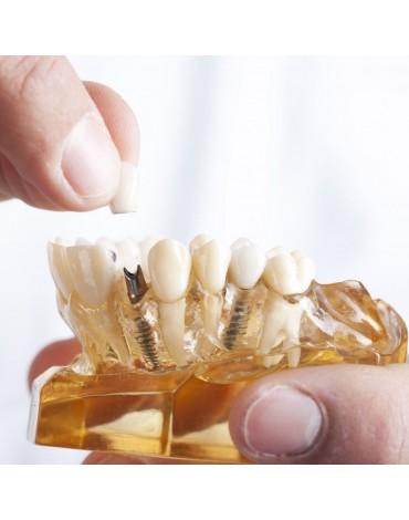 Crown on implants (Implanted Crown)