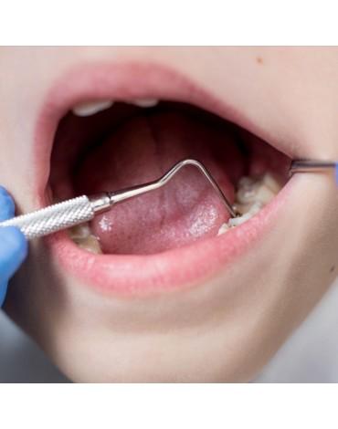 Multiracial molar endodontics (nerve treatment in molars)