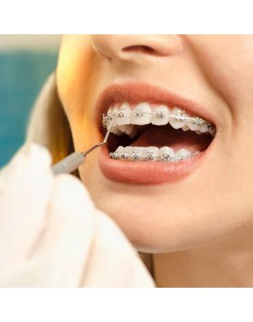 Pre-surgical orthodontics