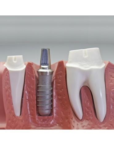 Dental implant placement surgery