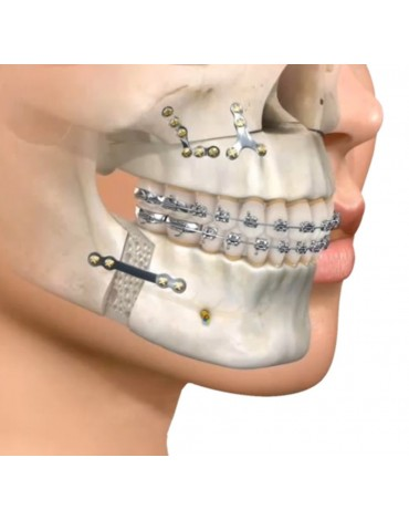 Orthognathic surgery (by osteotomy)