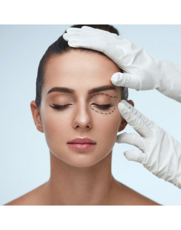 Blepharoplasty (two eyelids)